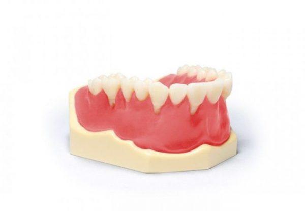 zubnie-protezi-prisoskax-E9F9F2B